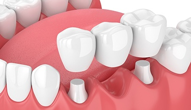 Digital model of a fixed dental bridge.