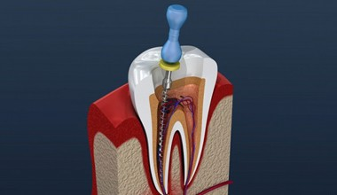 A diagram of root canal therapy.