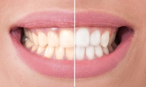 Professional teeth whitening works better than store-bought products. Learn details on this cosmetic treatment from Medina dentist, Dr. Allan J. Milewski.