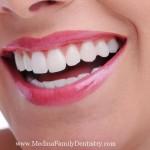 smile-medina-family-dentistry-copy